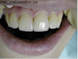 дизайном формы зуба или зубного ряда